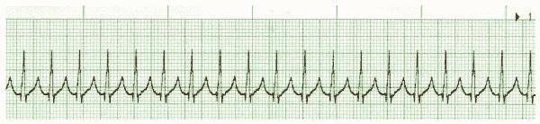 ACLS ECG Rhythm Strip 1