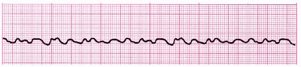 ACLS ECG Rhythm Strip 2