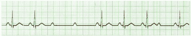 ACLS ECG Rhythm Strip 3