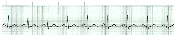 ACLS ECG Rhythm Strips