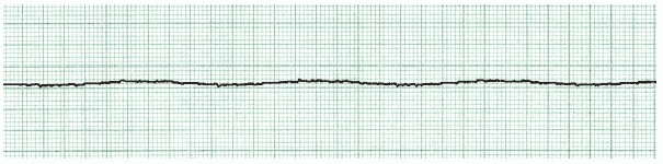 ACLS ECG Rhythm Strips 6