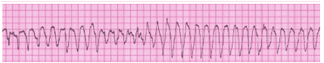 ACLS ECG Rhythm Strips Pretest Question