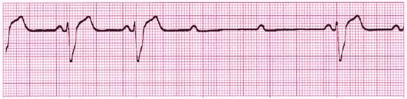 Cardiac rhythm interpretationtest 10-min